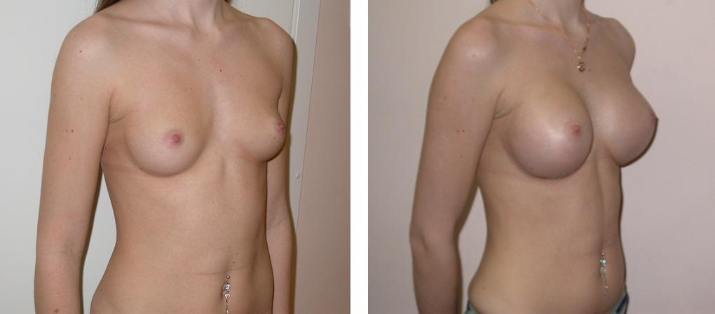 Как увеличить грудь медицинскими способами